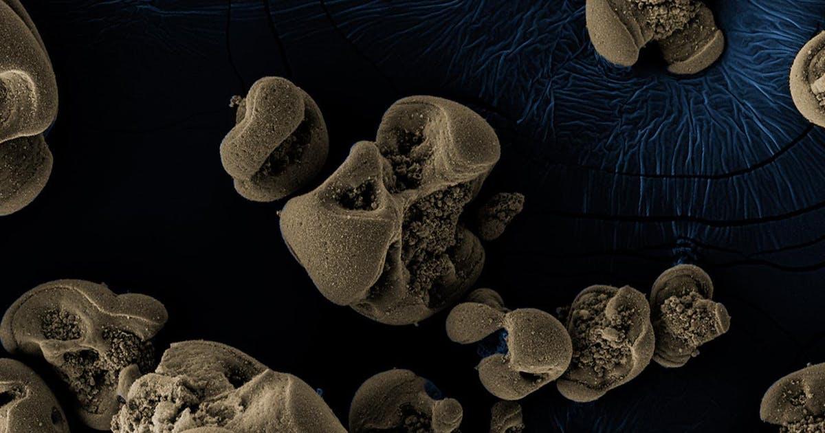 Photo of Es wird zufällig entdeckt – die neue Art von Bakterien ernährt sich von Metall
