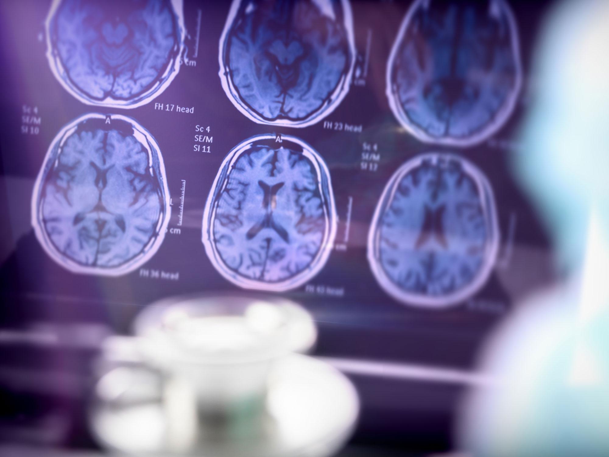 Photo of Ein Krebsmedikament kann Alzheimer-Patienten helfen