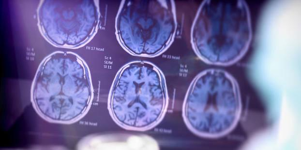 Nach sechs Monaten zeigten die Gehirnscans der Teilnehmer signifikante Verbesserungen.