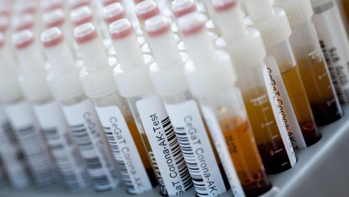 Im Blut von mit Korona infizierten Menschen: Forscher finden neutralisierende Antikörper